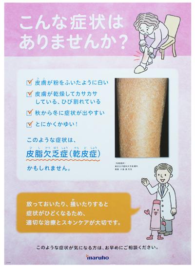 マルホ 皮脂欠乏症 ポスター